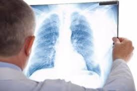 Tüdőszűrés lesz a művelődési háznál